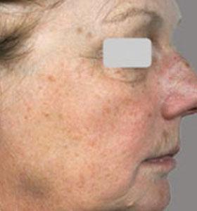 Skin Rejuvenation Treatment For Older Women Before Treatment . Sharplight