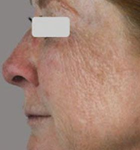 Skin Rejuvenation Treatment For Middle Aged Woman Before Treatment . Sharplight