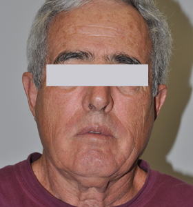 Vascular Lesions Treatment For Middle Aged Man- Before Treatments . Sharplightech