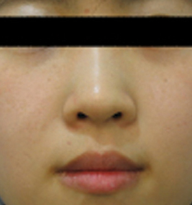 Pigmented Lesions - Young Girl - sun pigmented After 3 Treatments . Sharplight