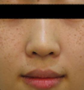 Pigmented Lesions Treatment - Young Girl - sun pigmented Before . Sharplight