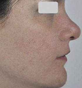 Acne Treatment For Teen Age Girl - After 12 Treatments . Sharplight