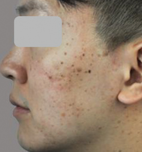 Acne Treatment Type 2 before Treatment . Sharplight