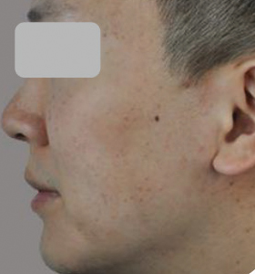 Acne Type 2 After 4 Treatments . Sharplight