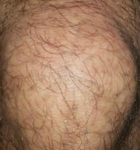 Tattoo Removal Treatment- Star After 1 Treatment . Sharplight