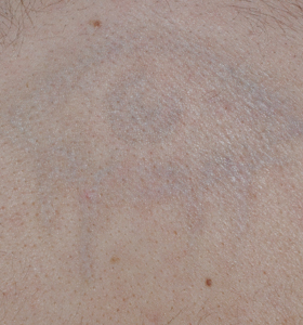 Tattoo Removal Treatment- eye After 4 Treatments . Sharplight