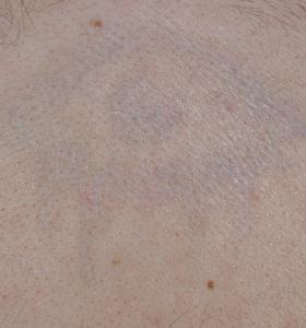 Tattoo Removal Treatment- eye After 4 Treatments . Sharplight