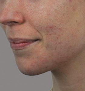 Acne Treatment For Young Women Before Treatment . Sharplight