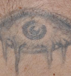 Tattoo Removal Treatment- Eye Before Treatment . Sharplight
