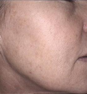Skin Rejuvenation Cheek After 2 Treatments . Sharplight