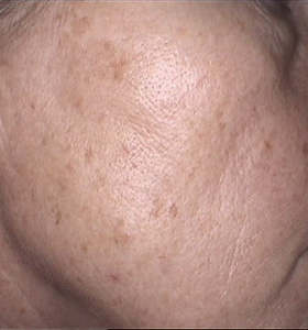 Skin Rejuvenation Cheek Before Treatment . Sharplight
