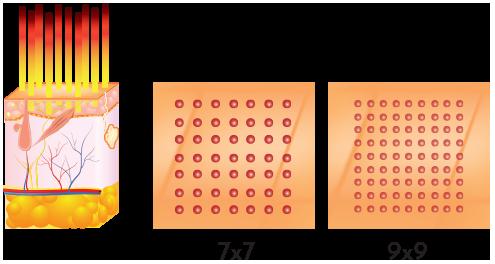 A demonstration of how Er: YAG 2940 Fractional Laser works . SharpLight