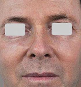 Skin Rejuvenation Treatment For Man After 4 Treatments . Sharplight