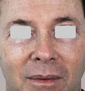 Skin Rejuvenation Treatment For Man Before Treatment . Sharplight