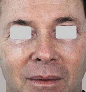 Skin Rejuvenation Treatment For Man Before Treatment . Sharplight