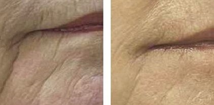 "Minimally Invasive Skin Resurfacing a""Micro Peel"", with the SLT Erbium Laser, Thermal Mode and Fractional Mode"