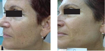 Skin Photo Rejuvenation with the SharpLight DPC Technology