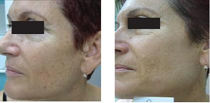 Skin Photo Rejuvenation with the SharpLight DPC Technology