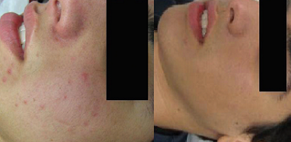 Acne Treatments using the SharpLight's AC415 nm Handpiece