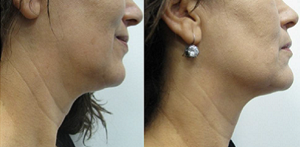 IR Hand piece for Face and Body Skin Tightening: a Hot Topic Utilizing Deep Dermal Heating