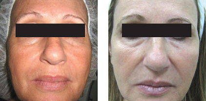 Infrared Technology for Skin Tightening – A Hot Topic Utilizing Deep Dermal Heating
