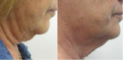 Radiofrequency for Facial Skin Tightening